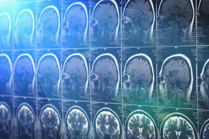 Brain scan, MRI or X-Ray. Neurology tomography concept stock image