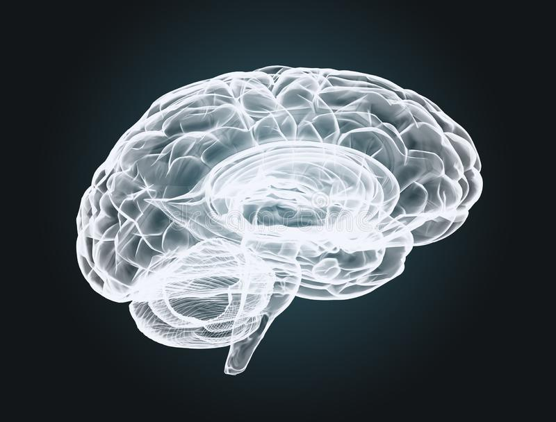 Brain scan  X-ray image of the human brain royalty free stock photo