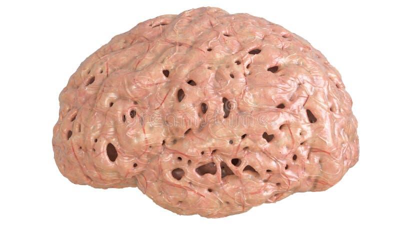Brain in severe brain disease, Dementia, Alzheimer, Chorea Huntington - 3D Rendering royalty free illustration