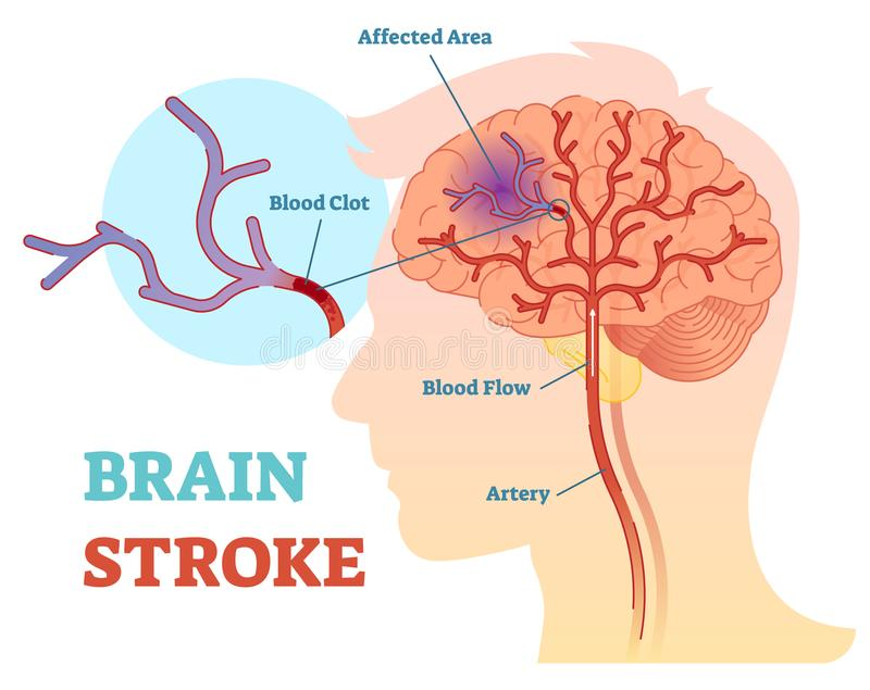 Brain Stroke anatomical vector illustration diagram, scheme stock photos