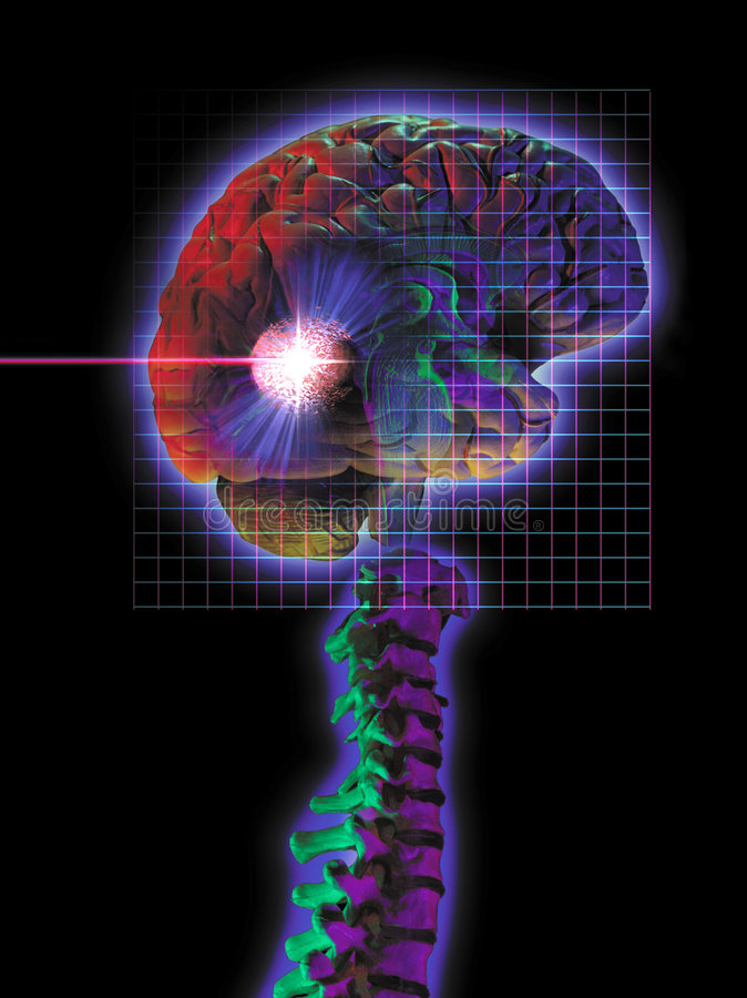 Brain surgery. Photo montage showing brain tumor being vaporized with radio surgery vector illustration
