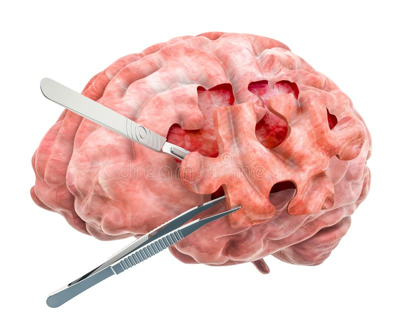 Brain surgery concept. 3D rendering. Isolated on white background royalty free illustration