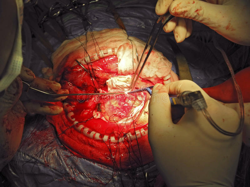 Brain Surgery. Detail close-up of brain surgeon at work royalty free stock photo