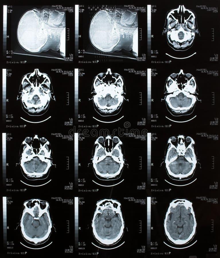 Brain Tomography. Photo of a Brain Tomography exam stock photos