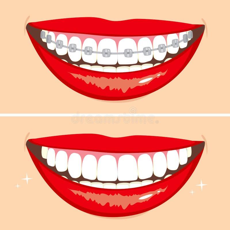 Braketsglimlach vector illustratie