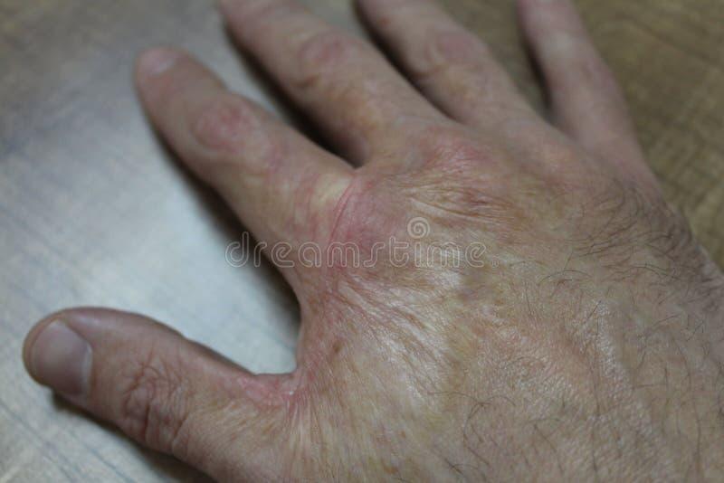 Brandwondlitteken op een mannelijke hand stock foto's