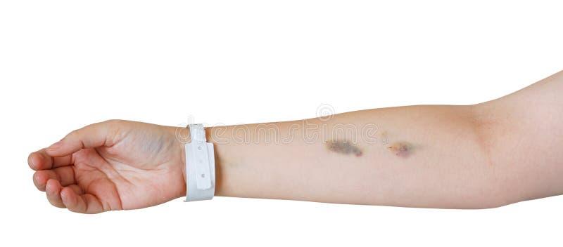 Bras avec les contusions d'injection et le wristband d'hôpital photo libre de droits
