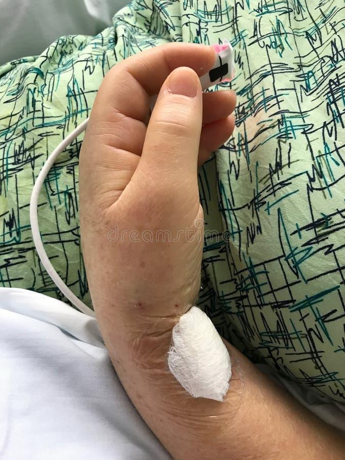 Brazo y mano pacientes del ` s en hospital fotos de archivo
