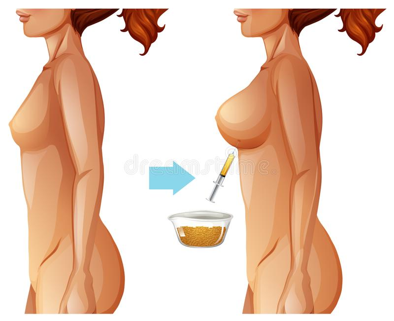 Breast augmentation fat transfer method. Illustration vector illustration