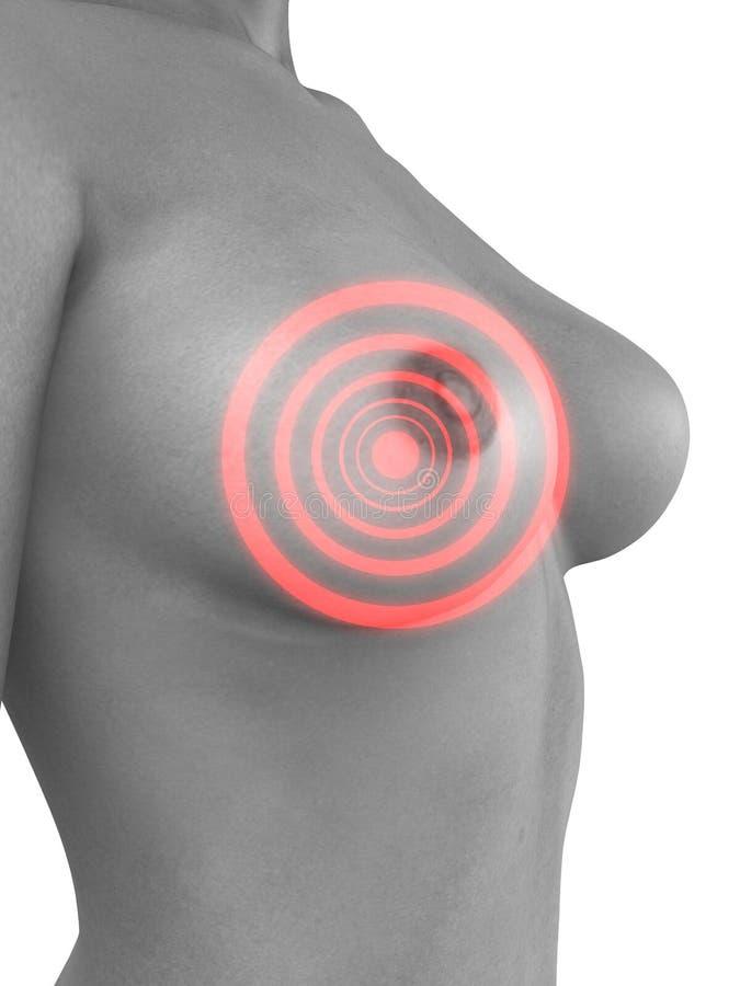 Download Breast cancer stock illustration. Illustration of menstruation - 5604927