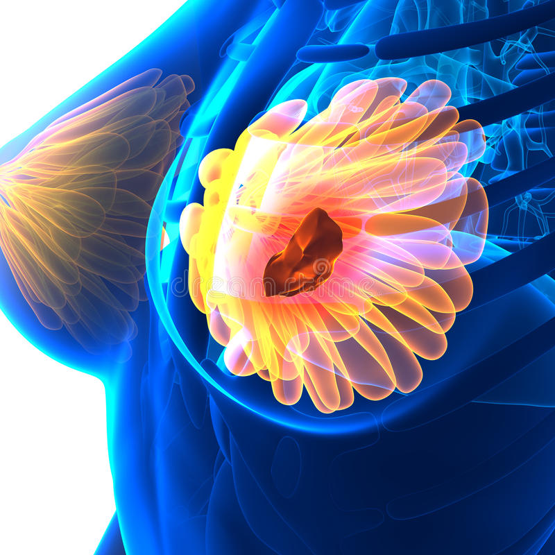 Breast Cancer - Female Anatomy - isolated on white. Concept vector illustration