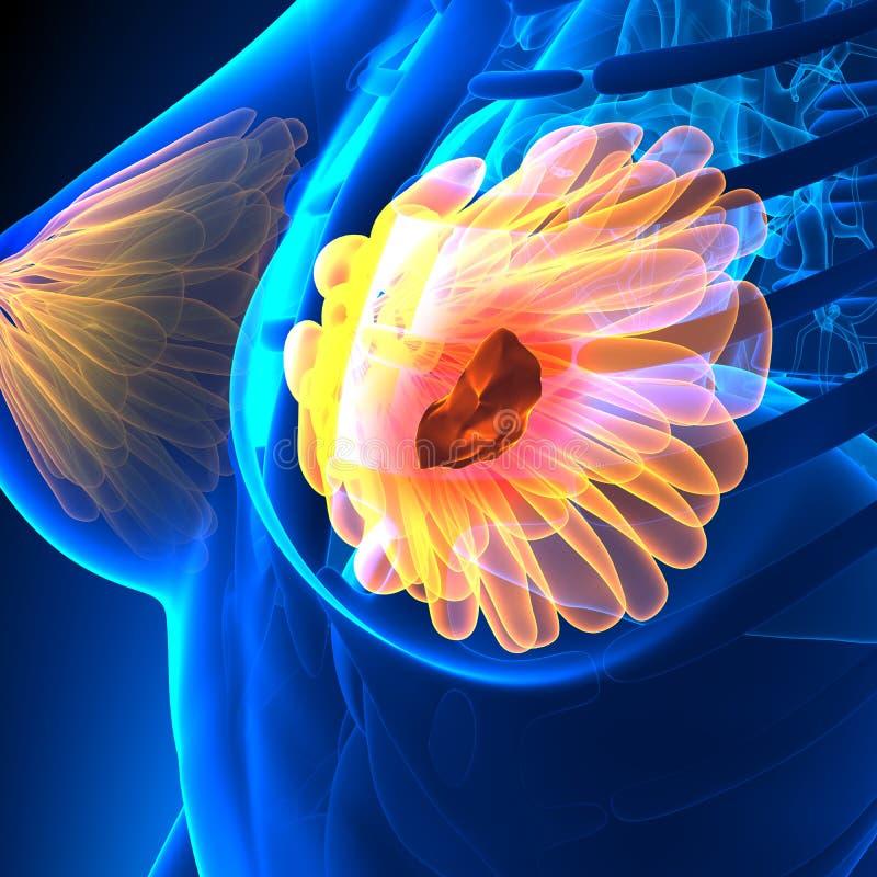 Breast Cancer - Female Anatomy - tumor highlight stock illustration