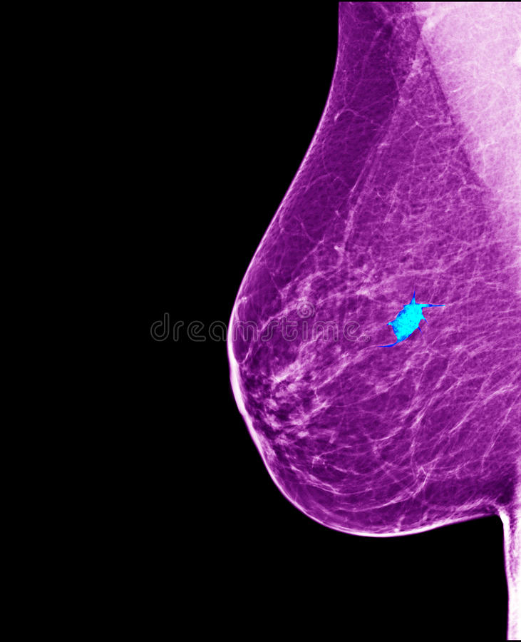 Breast cancer - mammogram. Digital mammography image breast, screening for breast cancer, radiology royalty free stock image