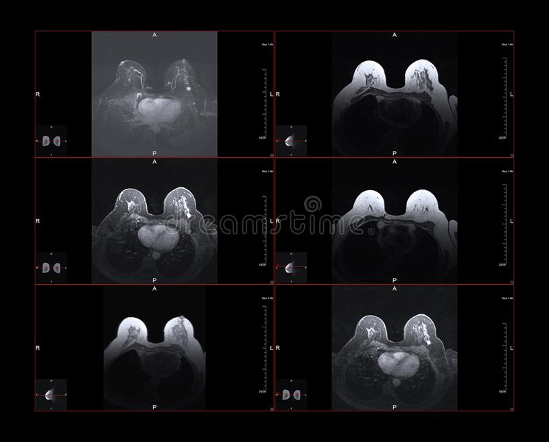 Breast cancer MRI royalty free stock photography