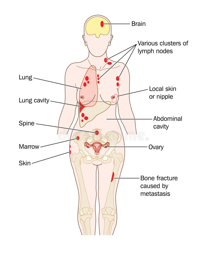 Breast cancer secondaries. Sites of breast cancer metastatic spread, to the lung, brain, liver bone and other sites royalty free illustration