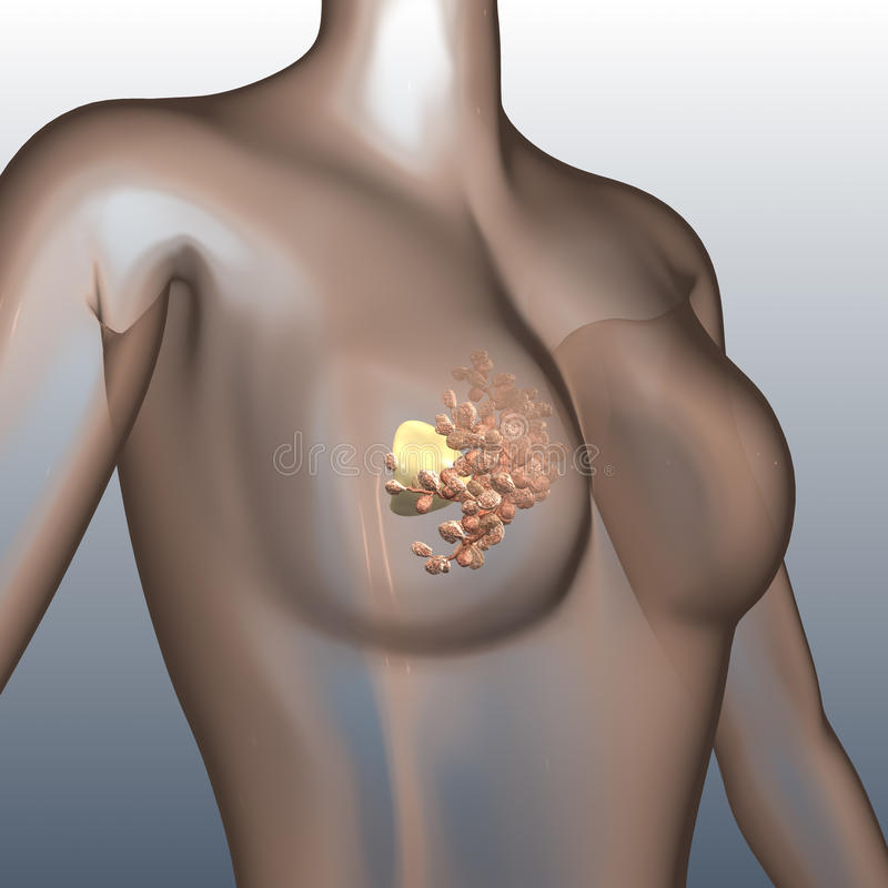 Breast cancer. A stylized 3d visualization of breast cancer cells on the surface of breast tissue stock illustration