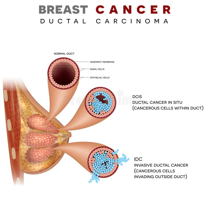 Breast Ductal cancer stock illustration