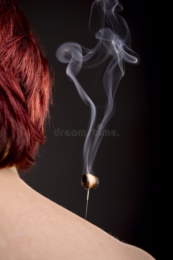 Brennendes moxa auf Akupunkturnadel stockfotografie