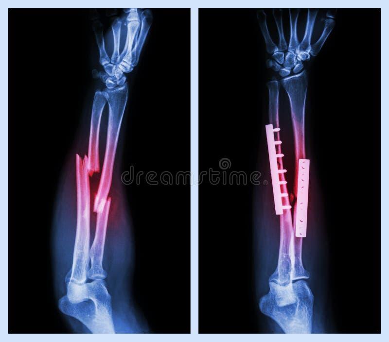 Breuk beide been van voorarm Het werd in werking gesteld en intern vast met plaat en schroef stock afbeelding