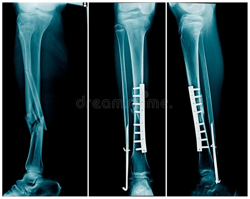 Breukbeen beide been met postverrichtingsbevestiging stock afbeelding