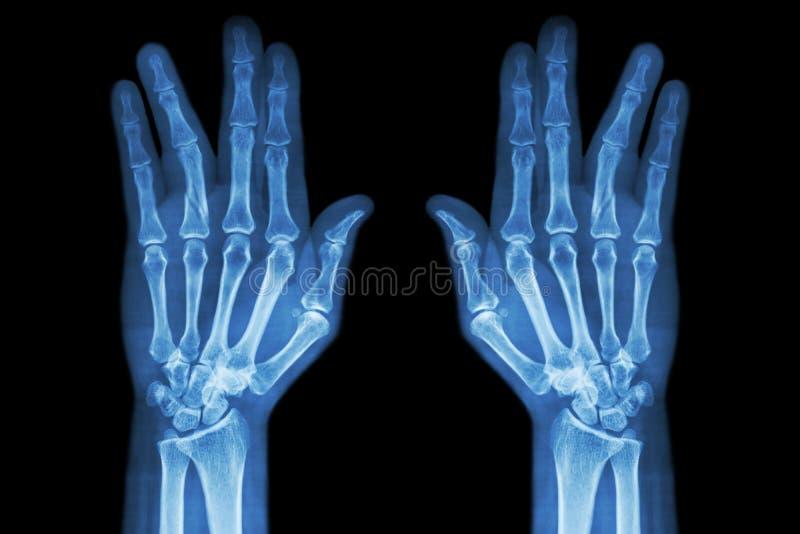 Breukschacht van proximale phalange van ringvinger (filmröntgenstraal beide handap) stock afbeelding