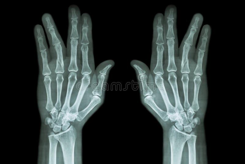 Breukschacht van proximale phalange van ringvinger (filmröntgenstraal beide handap) royalty-vrije stock foto's