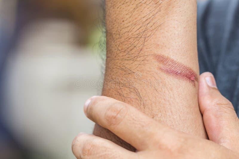 Brinnande hud på armen, skada från brand arkivfoton