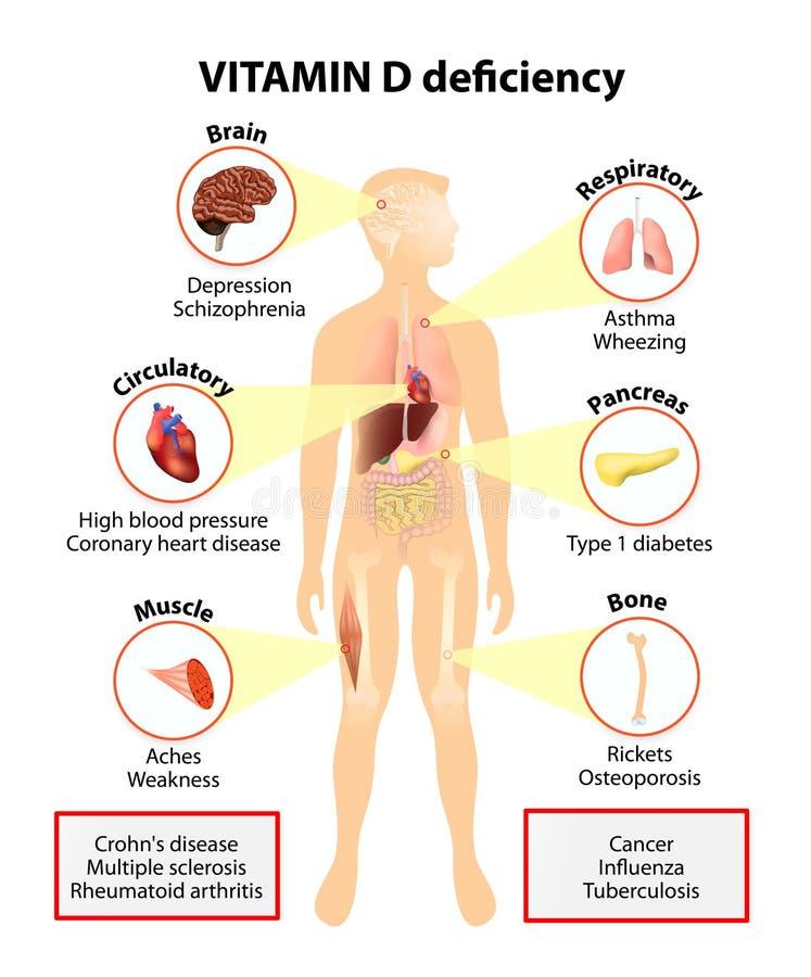 Brist för vitamin D tecken och sjukdomar stock illustrationer