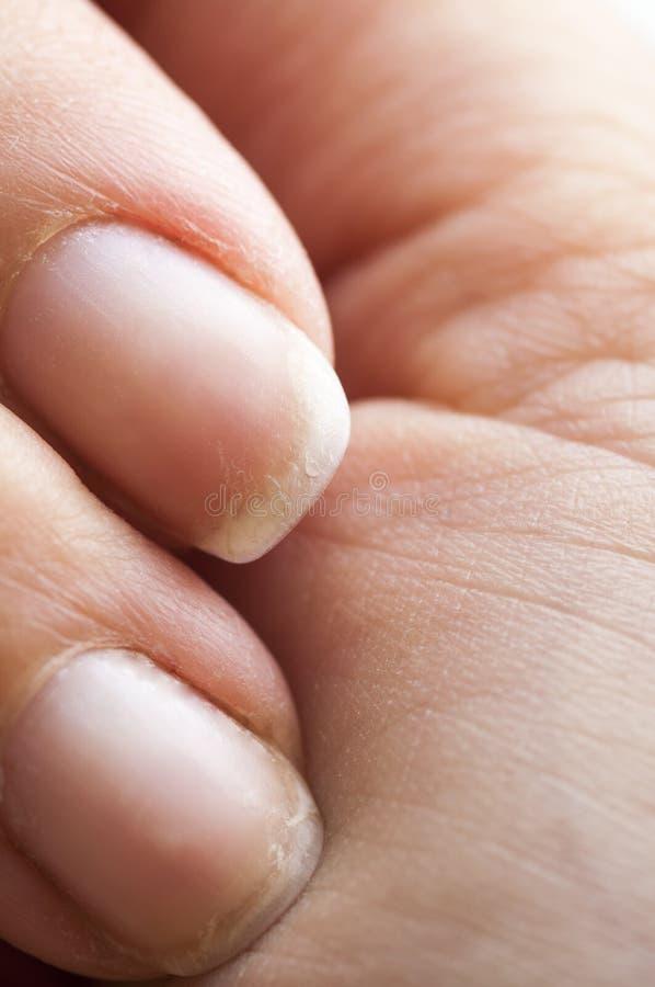 Brittle damaged fingernails. Close-up of woman's brittle damaged fingernails royalty free stock photography