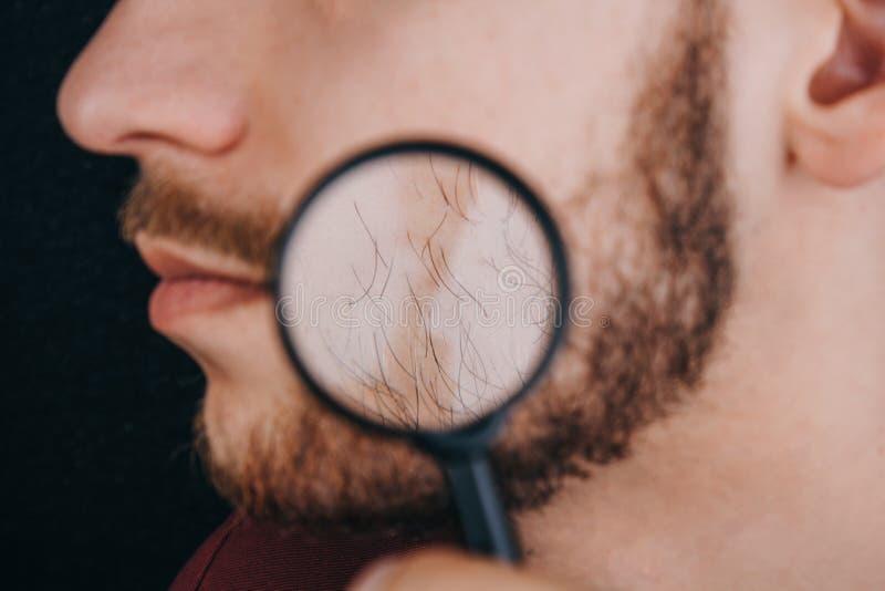 Broda pod powiększać - szkło hairline na mężczyzny twarzy zamkniętej w górę portret facet z wąsy zdjęcie royalty free