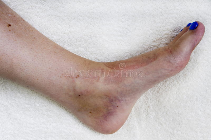 Broken Ankle after Operation royalty free stock photography