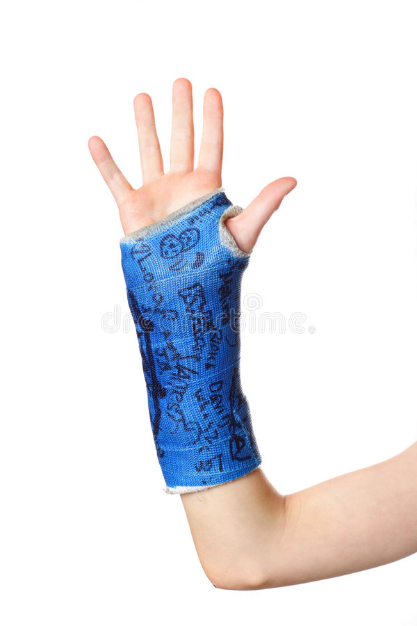 Free Broken Arm Royalty Free Stock Photography - 1859117