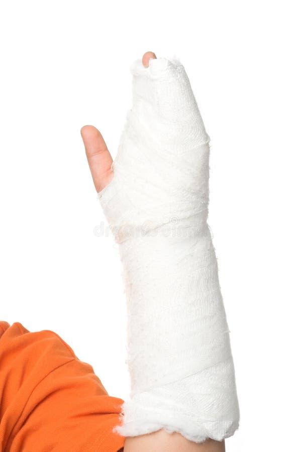 Download Broken arm stock image. Image of accident, injured, injury - 5099855