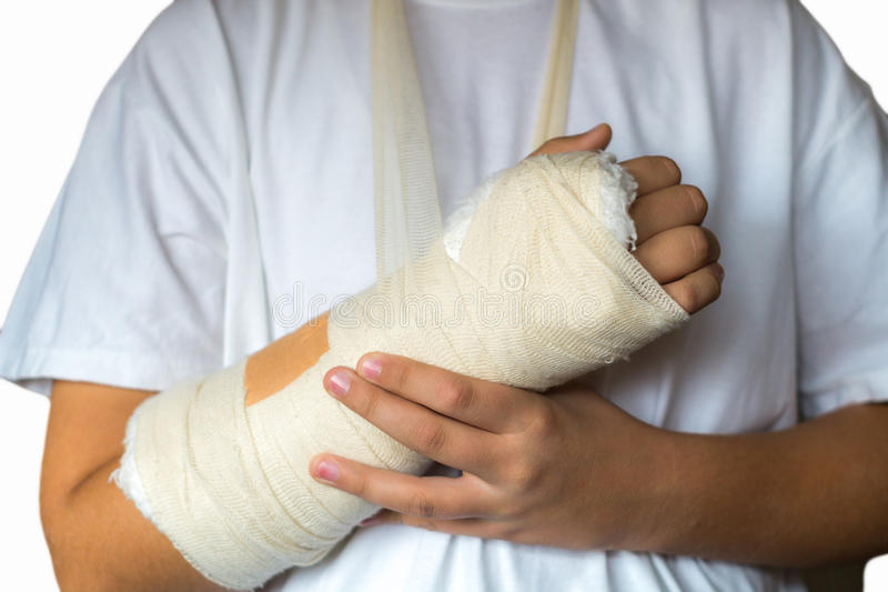 Broken Arm. Boy with broken arm in cast royalty free stock images