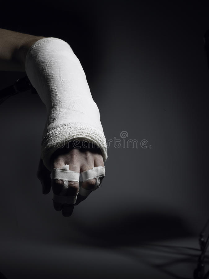 Broken arm and fingers royalty free stock photos