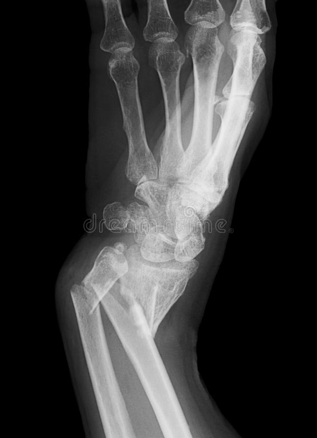 Free Broken Forearm Stock Images - 15392604
