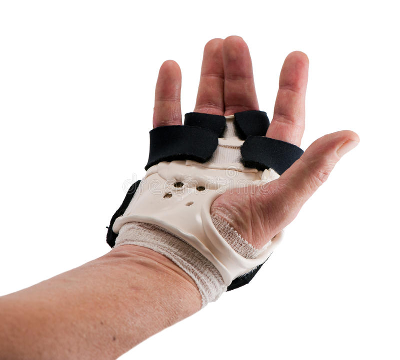 Download Broken Hand stock image. Image of physio, patient, orthopedic - 21049313
