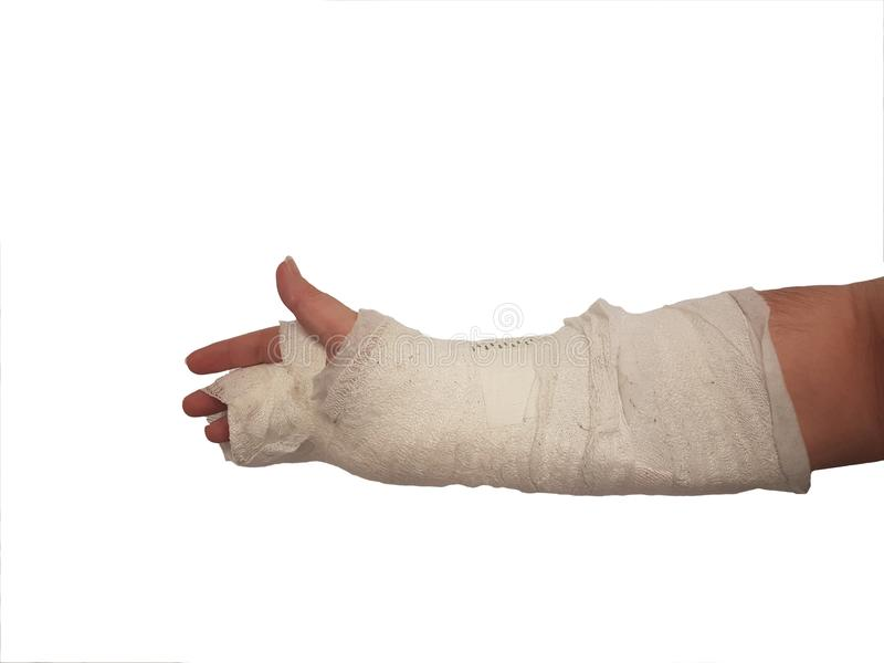 Broken hand plaster. right hand. male. isolated stock images