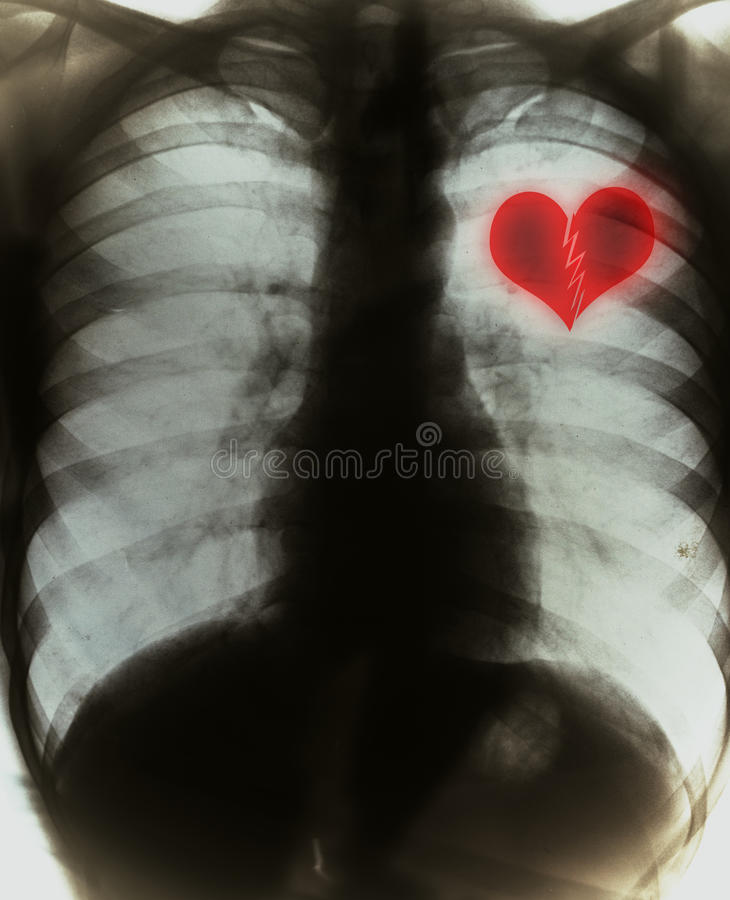 Broken heart. On black x-ray film vector illustration