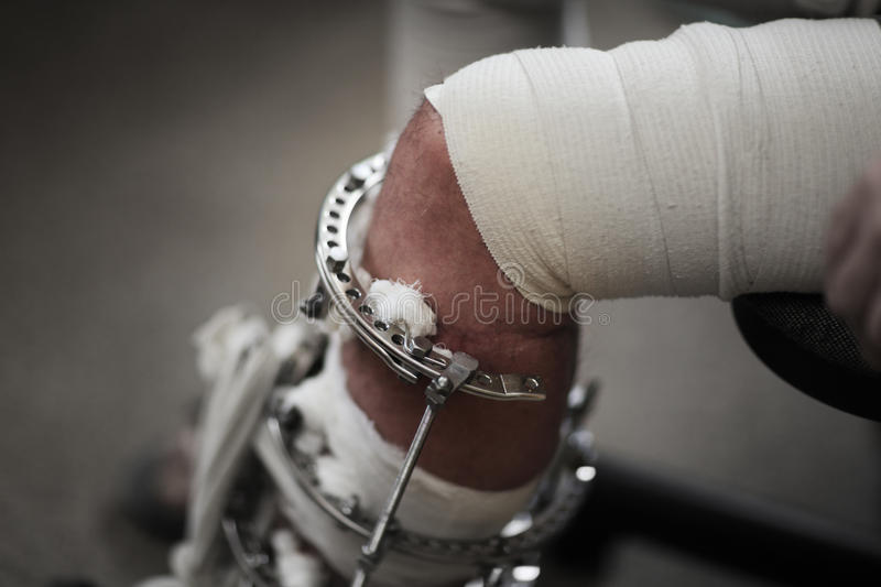 Broken leg. In Ilizarov apparatus royalty free stock photo