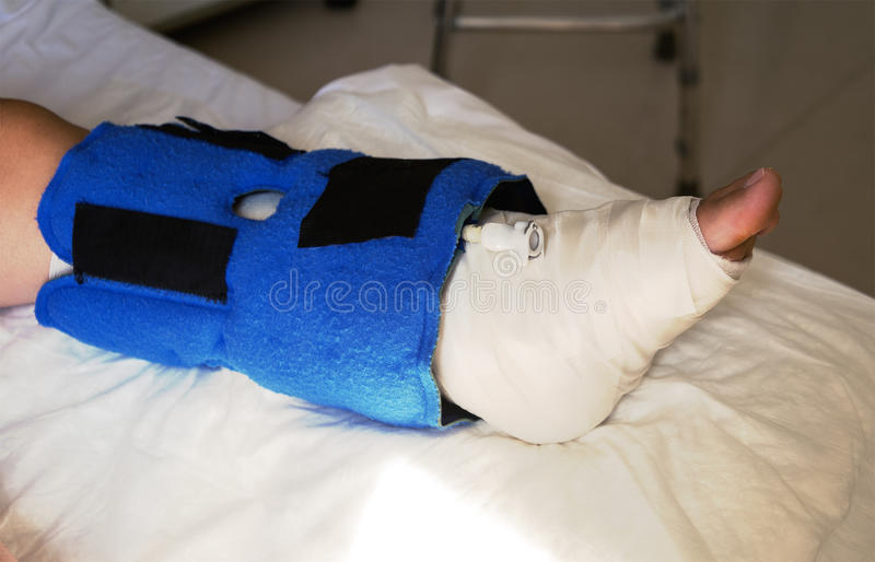Broken leg and bandaged royalty free stock photography