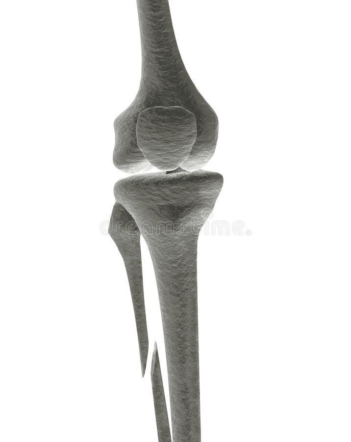 Crushed Human Bone : Broken leg bone ray stock images image