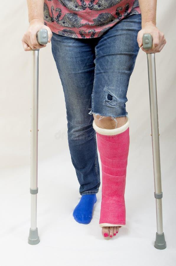 Broken Leg and Crutches royalty free stock photos