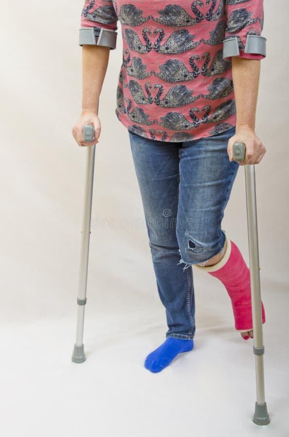 Broken Leg and Crutches stock photography