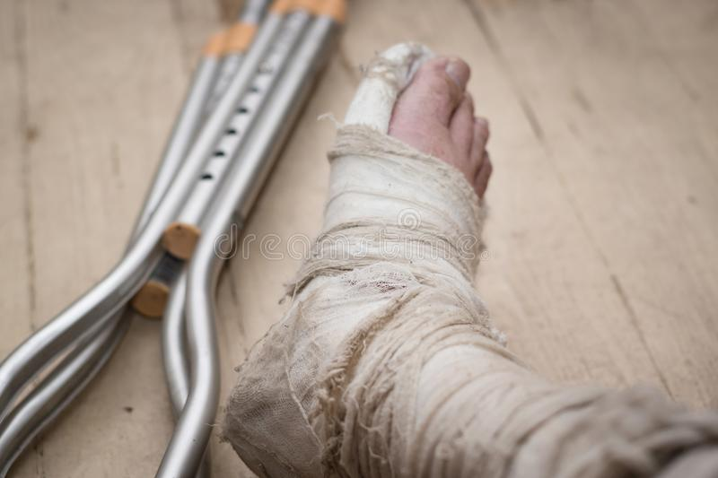 Broken leg in plaster on a shabby wooden floor stock photos