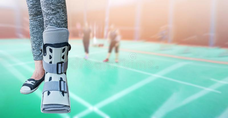 Broken leg with short splint for treatment of injured woman stan royalty free stock images