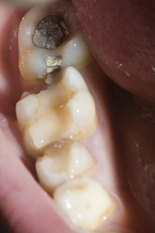 Broken molar. And amalgam filling stock images