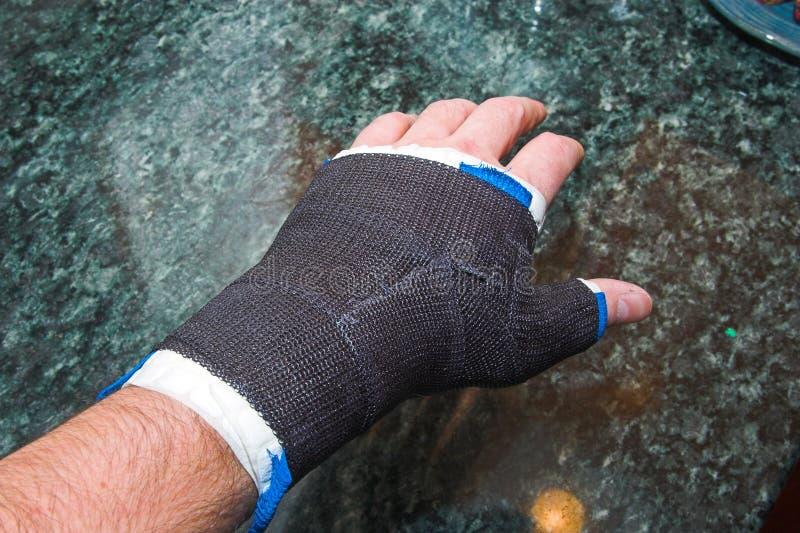 Broken thumb heal