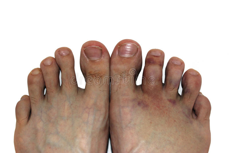Broken toe. The foot injury - fracture of the bone. Two legs. The right leg is healthy, but left has bruises. The photograph on the subject of medicine and stock images
