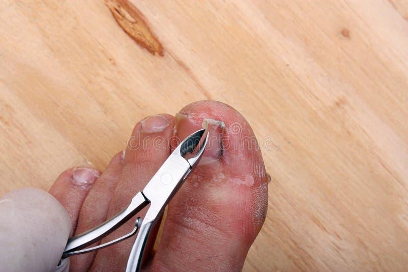 Broken toe nail. Surgery on a broken toe nail a man royalty free stock photos